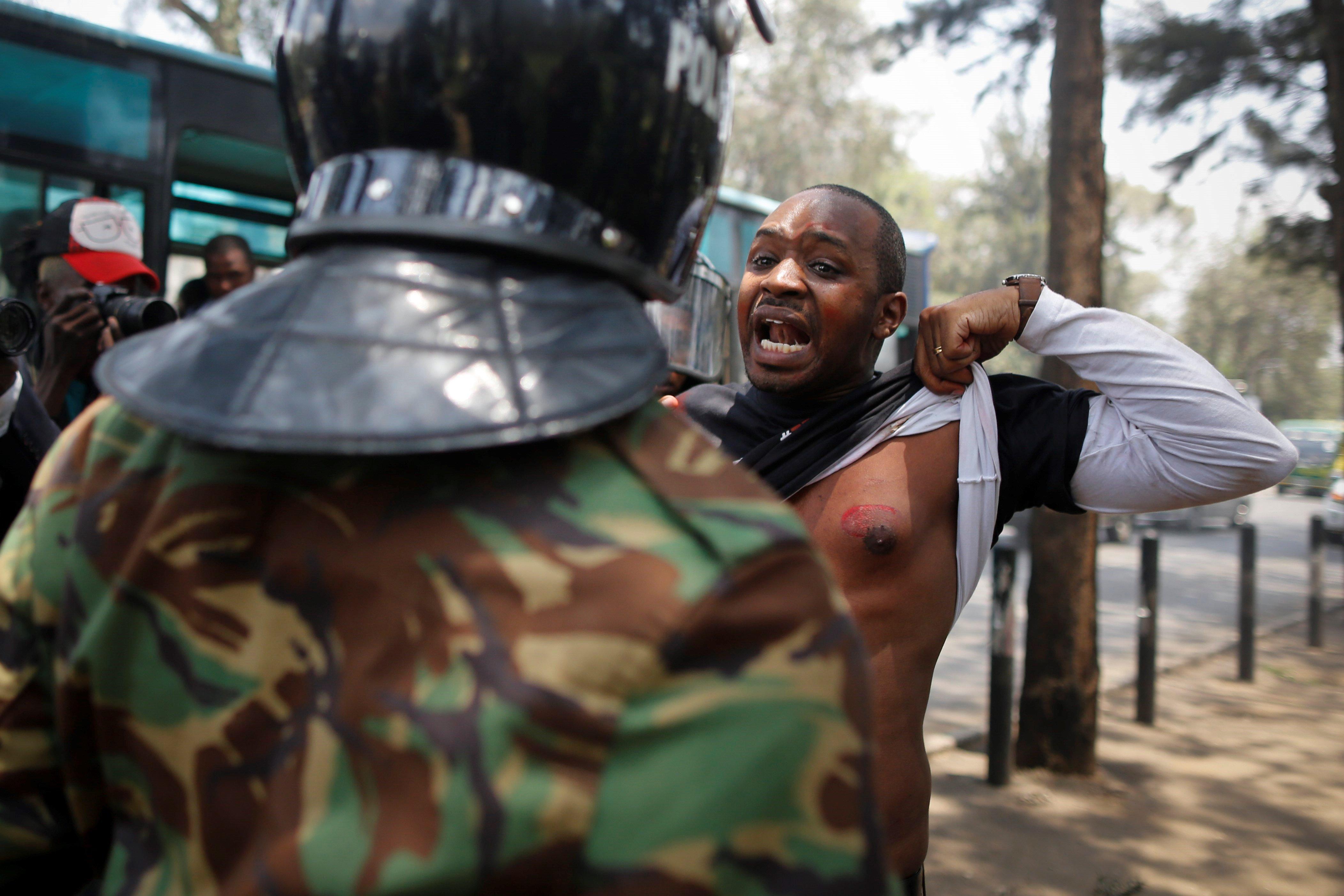 L'activista kenyà Boniface Mwangi mostra la ferida per l'impacte d'un pot de gas lacrimogen durant una manifestació contra els casos recents de brutalitat policial a Nairobi (Kenya). /DAI KUROKAWA