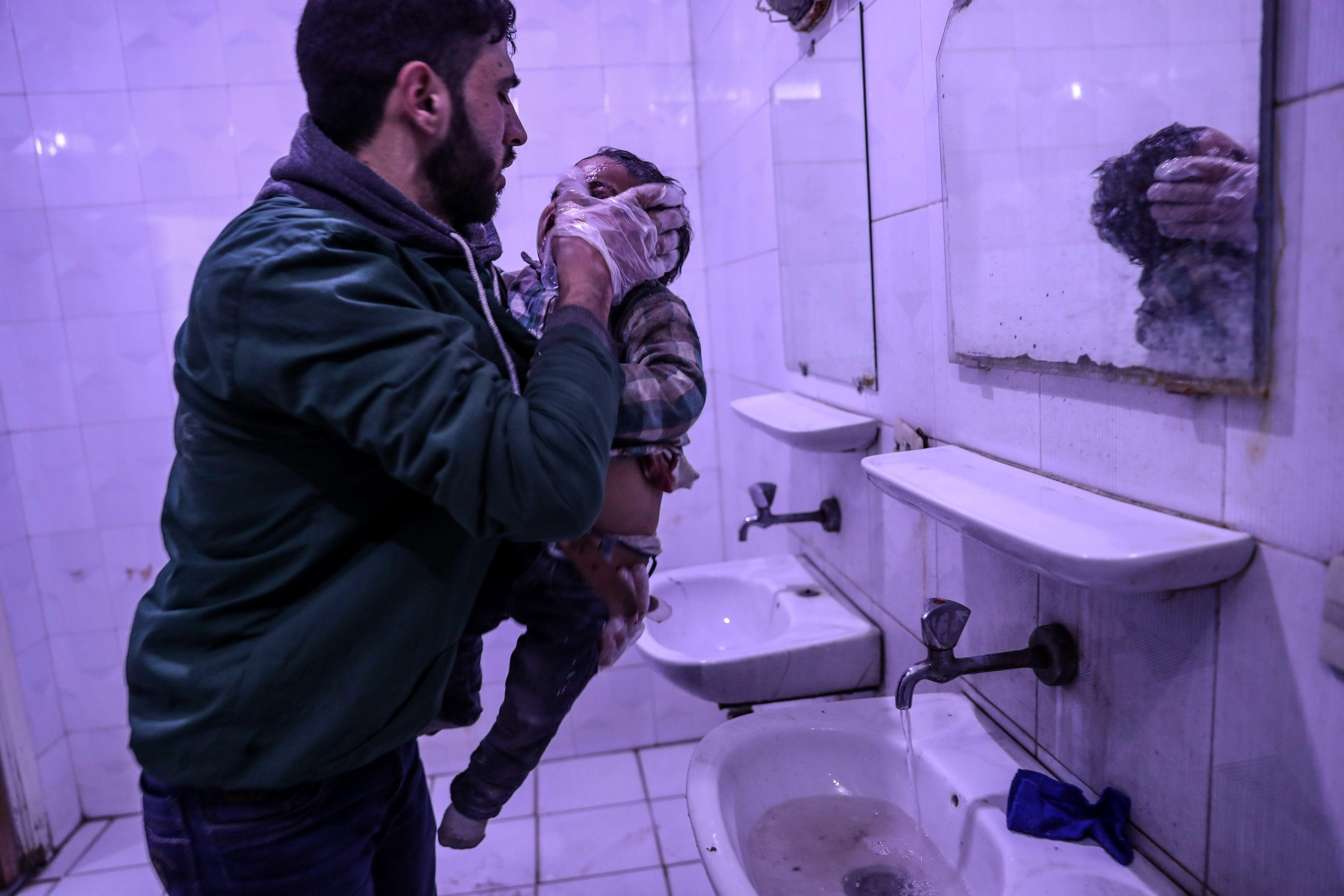 Un nin rep tractament mèdic en resultar ferit en un bombardeig en Duma, a l'est Guta, Síria. /MOHAMMED BADRA