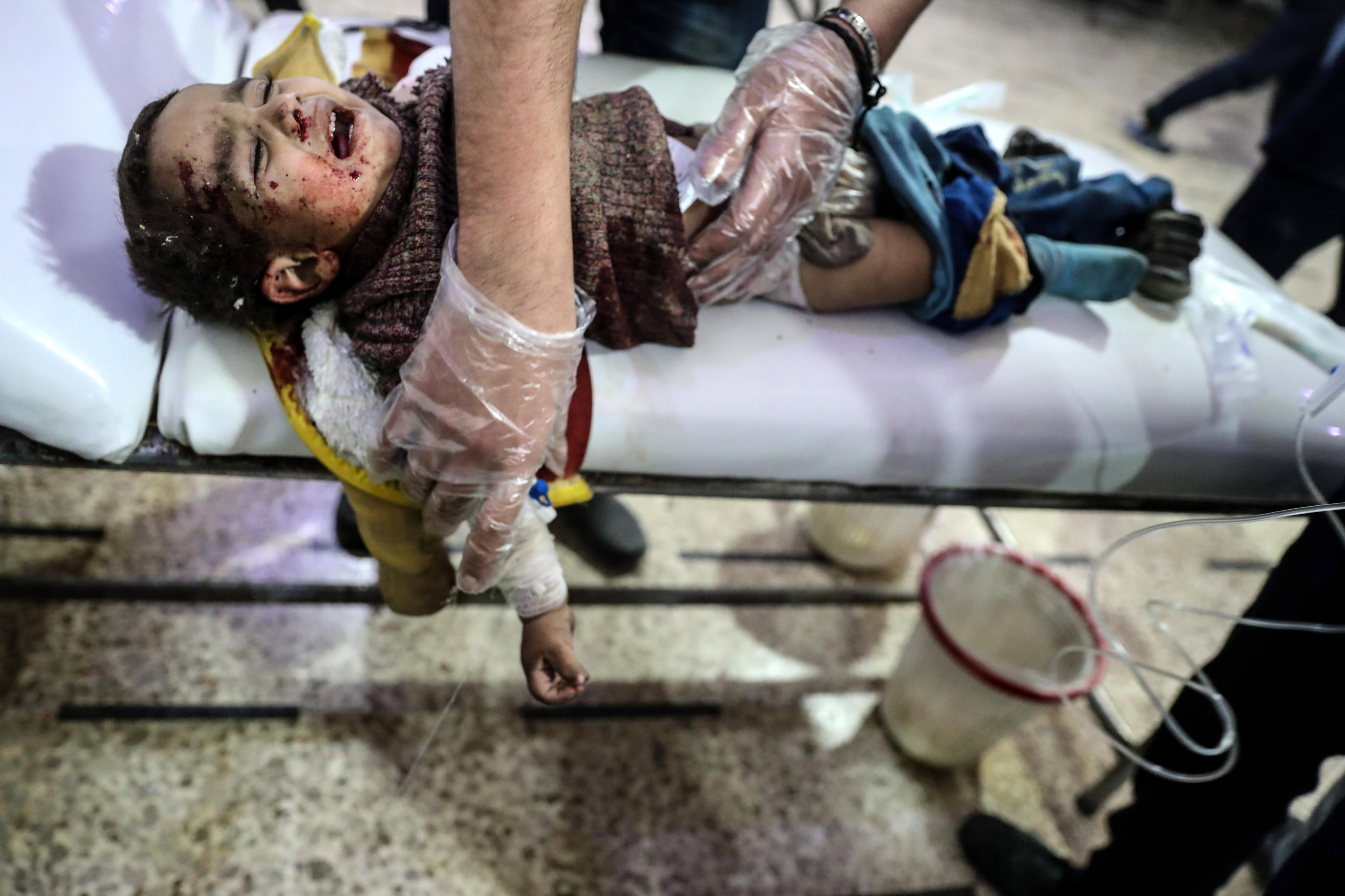 Un nin ferit rep atenció mèdica després d'un bombardeig contra els rebels a Douma, Ghouta Oriental, Síria. /MOHAMMED BADRA