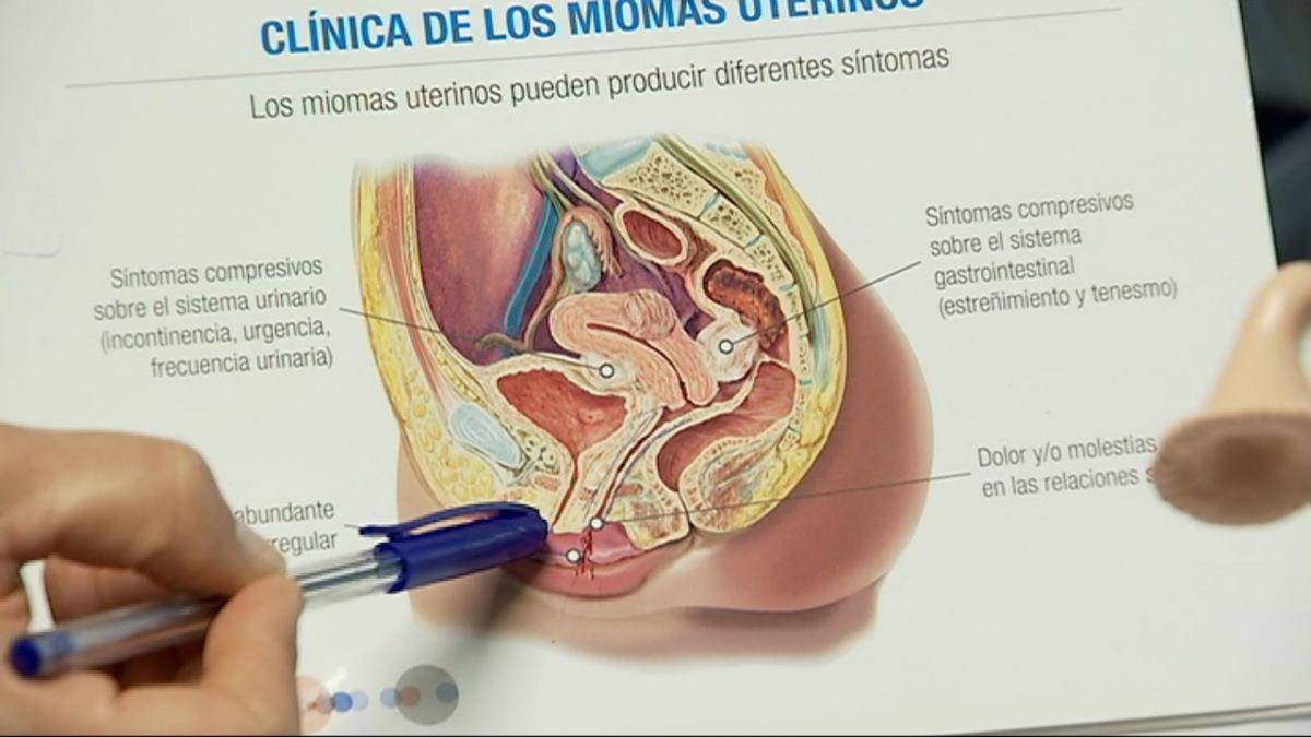 Son+Espases+at%C3%A9n+cada+setmana+10+dones+per+la+incontin%C3%A8ncia+urin%C3%A0ria