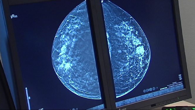 Son+Espases+utilitza+una+t%C3%A8cnica+per+fer+mamografies